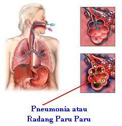 Obat Pneumonia Alami